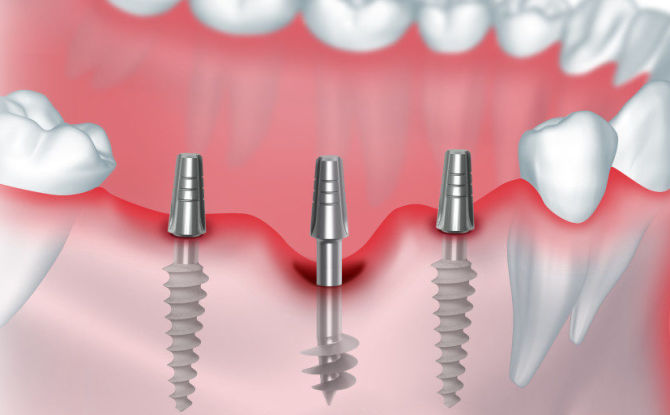 Implantation basale: qu'est-ce que c'est, les avantages et les inconvénients, les étapes de la pose de prothèses dentaires, les complications
