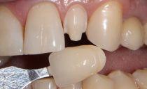 Extension des dents: comment construire, photo avant et après, avantages et inconvénients
