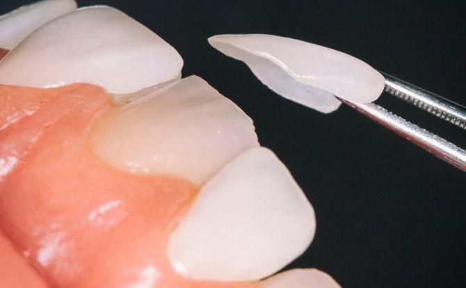 Coussinets de dents: quels sont-ils et comment s'appellent-ils