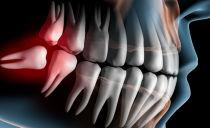 Ablation d'une dent de sagesse dans la mâchoire inférieure et supérieure, conséquences et complications possibles