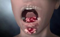 Cancer de la bouche: causes, symptômes, traitement et pronostic du cancer des joues, du palais, de la langue, des gencives et du bas de la cavité buccale