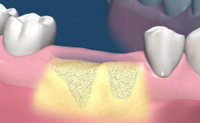Extension du tissu osseux avant l'implantation dentaire: l'essence de la procédure, les méthodes, les étapes, le coût
