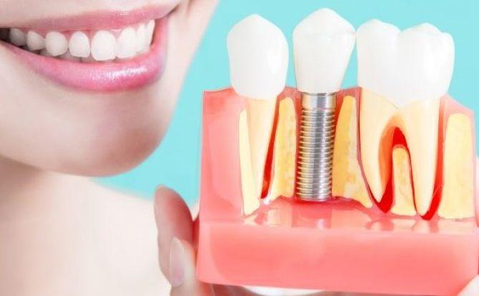 Combien cela coûte-t-il d'insérer un implant dentaire