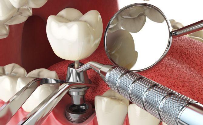 Implants dentaires - contre-indications et complications possibles