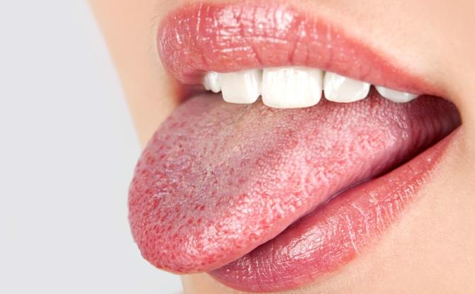 a nyelv papilláinak kezelése