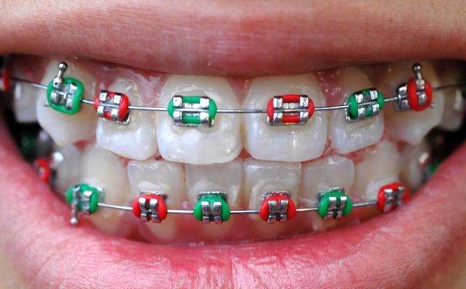À partir de quel âge et jusqu'à quel âge les appareils orthodontiques peuvent-ils être placés pour aligner les dents