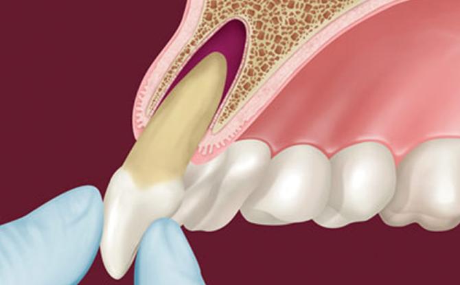 Que sont les alvéoles dentaires et où sont-elles
