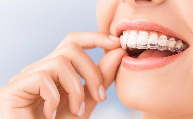 Comment aligner les dents avant et à mâcher sans croisillons chez les enfants et les adultes