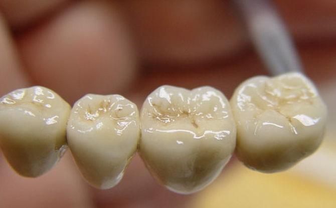 Prothèses en céramique, avantages et inconvénients des couronnes en céramique-métal