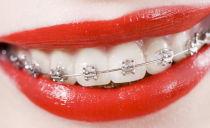 Combien cela coûte-t-il de redresser vos dents avec des appareils orthodontiques en 2019