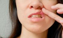 Traitement de la stomatite dans la bouche chez l'adulte à domicile