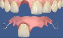 Types de fausses dents, quelles dents sont mieux à insérer