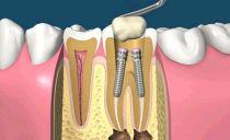 Une épingle dans une dent: qu'est-ce que c'est, comment sont-ils mis, types, coût