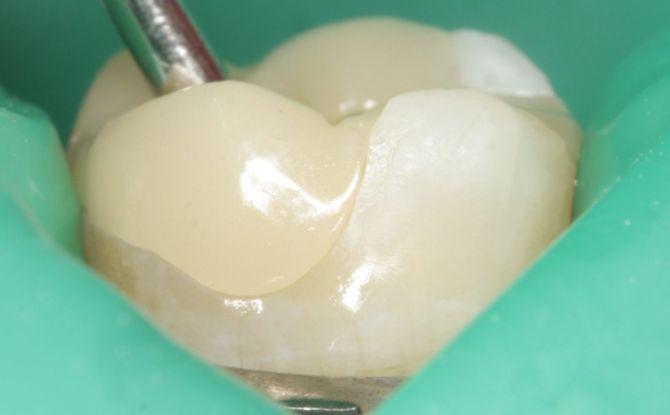 Une obturation temporaire sur la dent: pourquoi est-elle mise, combien tient-elle, comment est-elle retirée