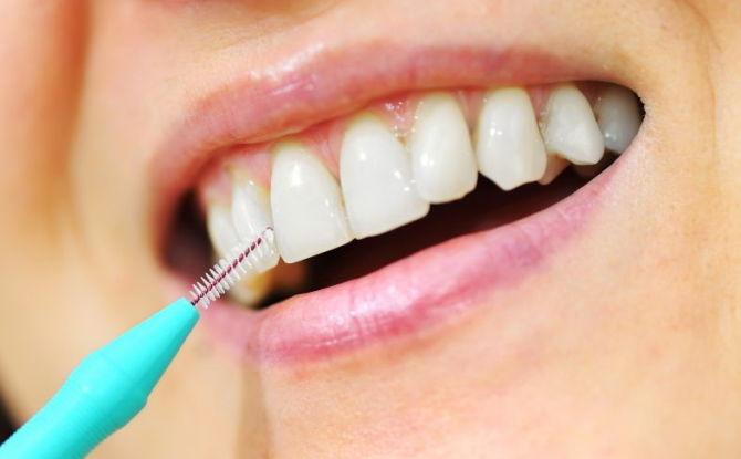 Brosses à dents: comment choisir et comment utiliser