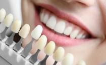 Placages sur les dents: qu'est-ce que c'est