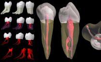 Ablation du nerf dentaire: comment et dans quels cas l'ablation est-elle effectuée, les conséquences