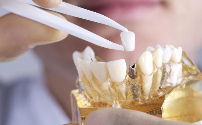 Le choix des prothèses dentaires avec absence partielle de dents: quelles sont les meilleures