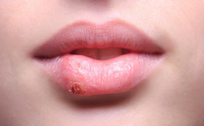 Maladies des lèvres chez l'adulte et l'enfant: noms avec photos, causes, symptômes et traitement