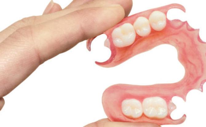 Prothèses amovibles en nylon complètes et partielles: types, avantages et inconvénients, soins