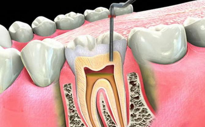 Une dent fait mal après l'ablation du nerf et le remplissage du canal: pourquoi et quoi faire