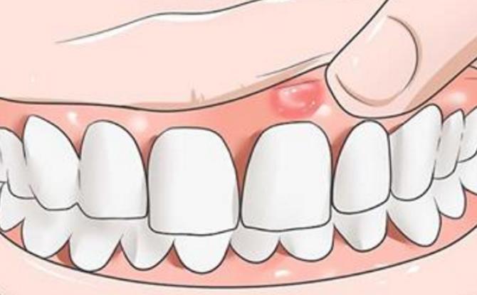 Symptômes et traitement de l'inflammation du périoste de la dent