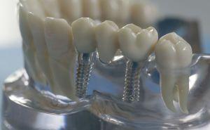 Types de ponts dentaires, qui sont meilleurs, comment les mettre et combien ils coûtent