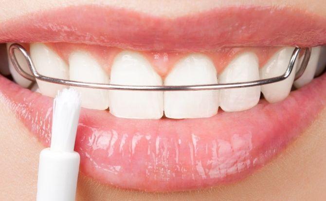 Dispositifs de retenue pour dents après appareils orthopédiques: pourquoi sont-ils nécessaires, comment sont-ils installés et combien