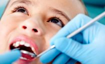 Pulpite d'une dent de bébé chez un enfant - symptômes, étapes du traitement, prévention