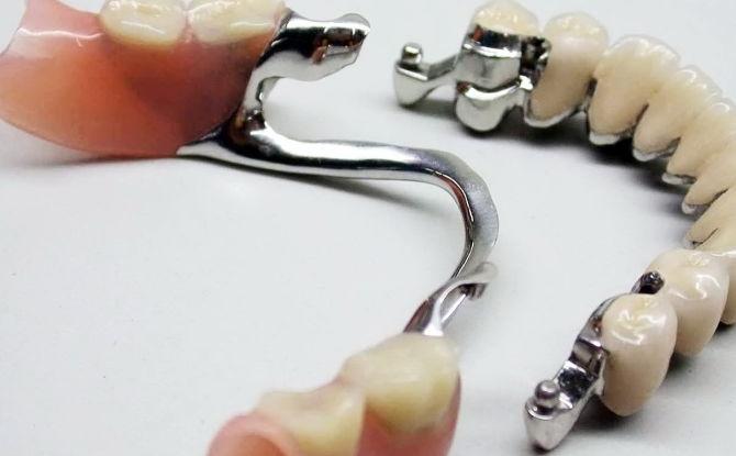 Prothèses dentaires avec prothèses de voûte plantaire: caractéristiques de conception, types, coût