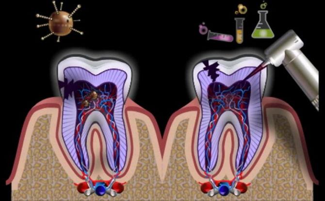 Inflammation de la racine de la dent et des canaux dentaires: signes, symptômes et traitement