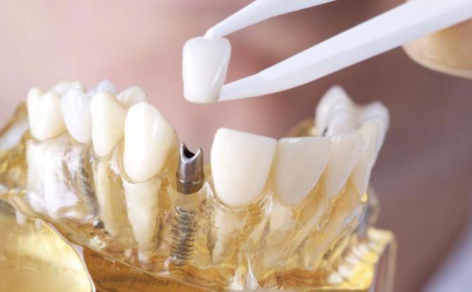 Comment mettre une couronne sur une dent: étapes et processus d'installation, préparation des dents, ça fait mal de mettre