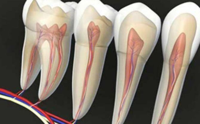 Inflammation du nerf dentaire: symptômes, traitement, gestion de la douleur à domicile