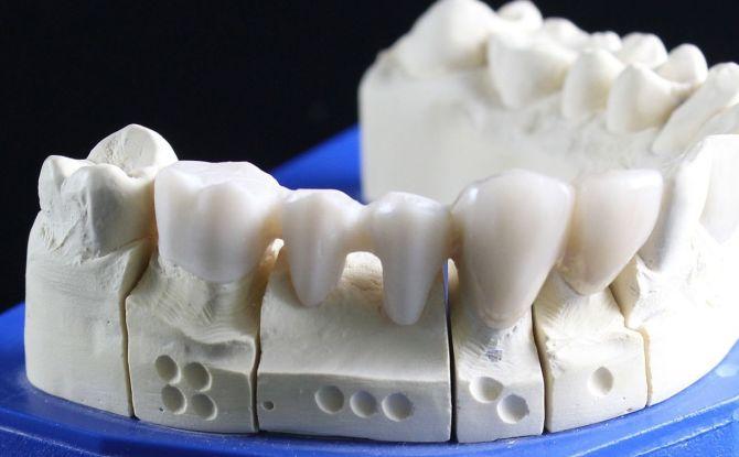 Les types et le coût des fausses dents, ce qui est mieux, comment économiser