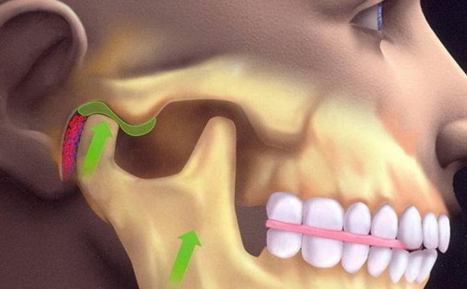Luxation de la mâchoire inférieure: symptômes, traitement, comment redresser la mâchoire à la maison