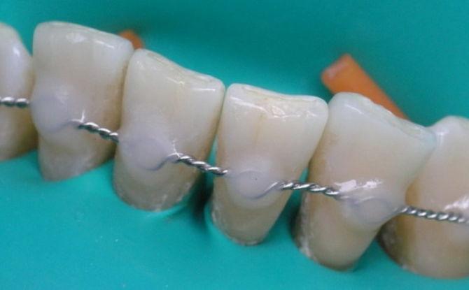 Attelle des dents mobiles en dentisterie: qu'est-ce que c'est, méthodes pour les maladies parodontales et la parodontite