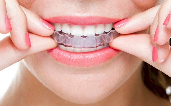 Formateurs dentaires pour enfants et adultes: variétés, indications, règles de port, coût