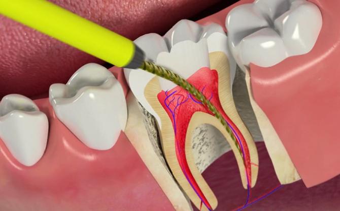Pulpite dentaire: comment guérir, méthodes et étapes du traitement, complications, prévention