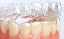 Protège-dents pour l'alignement des dents: qu'est-ce que c'est et comment ça marche