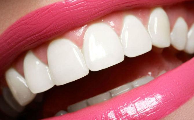Comment rendre les dents blanches à la maison et à la clinique, comment garder les dents blanches