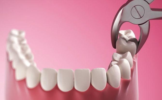 Est-il possible de retirer les dents pendant la grossesse, comment s'effectue le retrait