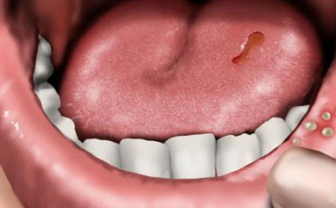 Stomatite dans la bouche chez l'adulte: si cela se produit, comment et avec quoi traiter