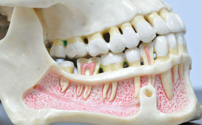 Ostéomyélite de la mâchoire inférieure et supérieure: causes, symptômes et traitement