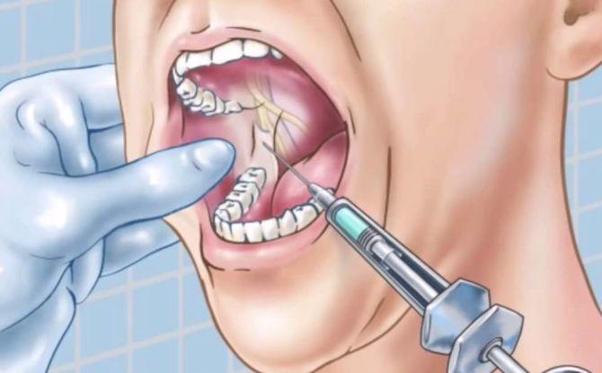 Anesthésie par conduction en dentisterie - qu'est-ce que c'est, types