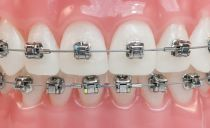 Combien d'appareils dentaires vous devez porter pour aligner vos dents, comment les appareils orthopédiques sont mis
