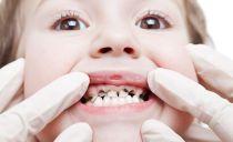 Argenture des dents chez l'enfant: pourquoi est-il nécessaire, indications, méthodes d'argenture des dents primaires