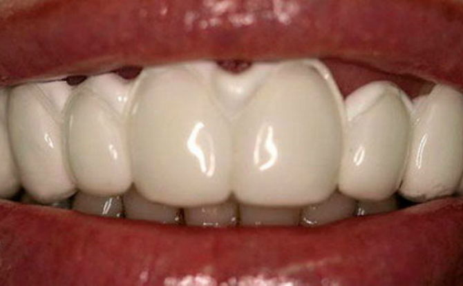 Reminéralisation de l'émail dentaire en dentisterie et à domicile