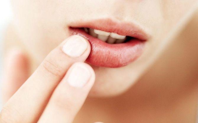 Onguents, crèmes et gels pour les boutons de fièvre sur les lèvres: une liste de médicaments efficaces pour les boutons de fièvre