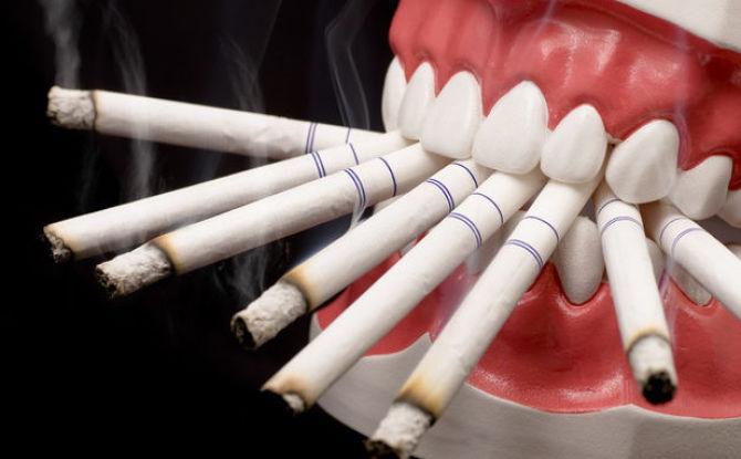 Quelle quantité ne peut pas être fumée après une extraction dentaire et pourquoi