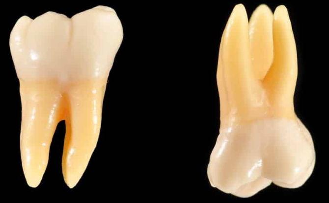 Quelles dents sont appelées molaires et prémolaires, caractéristiques anatomiques